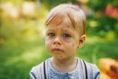 Niño con las mordeduras de insecto foto de archivo libre de regalías