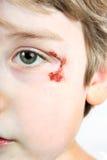 Niño con un rascado cerca de su ojo Imagen de archivo