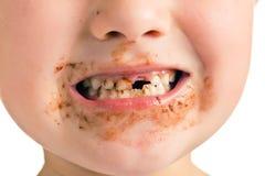 Niño con una boca sucia y un diente que falta imagenes de archivo