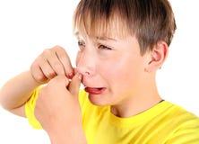 Niño triste con la espinilla Foto de archivo