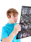 Niño triste con tomografía Foto de archivo libre de regalías