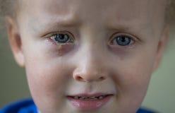 Ni?o triste y gritador con la conjuntivitis purulenta, infecci?n de ojo contagiosa S?ntomas y concepto del tratamiento Cierre par fotos de archivo libres de regalías