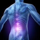 Niedrigere rückseitige Schmerz stock abbildung