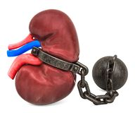 Nieren-Schmerzkonzept Menschliche Niere mit Fessel Wiedergabe 3d lizenzfreie abbildung