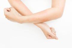 Nierozważna alergia od macanie ręk, egzema, Dermatitis zdjęcia royalty free