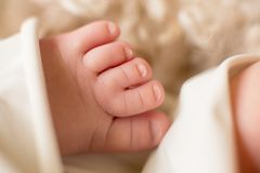 Niezwykli dzieci palec u nogi dziecko, congenital niedostatek, narodziny uraz, zdjęcie stock