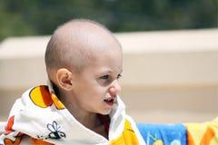 Niño del cáncer Imagenes de archivo