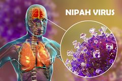Nipah virus infection. Newly emerging zoonotic infection with acute respiratory syndrome and severe encephalitis, 3D illustration stock image