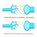 Niveau de Dopamin dans des neurones normaux et avec la maladie de Parkinson illustration libre de droits