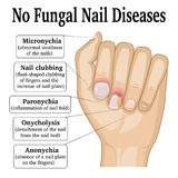 No Fungal Nail Disease. Illustration of five different non fungal nail diseases Stock Photography