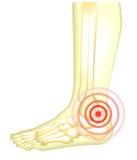 Noga ból Obrazy Royalty Free