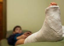 Noga w tynku Obrazy Stock