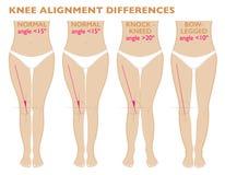 Nogi i kąty kolana, różni typy noga kształtują Normalny varus i valgus royalty ilustracja