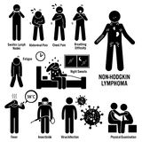 Non-Hodgkin Lymphoma Lymphatic Cancer Clipart. Set of illustrations for Non-Hodgkin lymphoma lymphatic cancer disease which include the symptoms, causes, risk Royalty Free Stock Photography