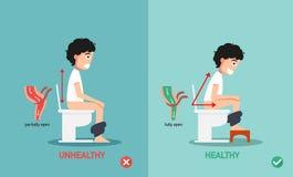 Non sano contro le posizioni sane per defechi illustrazione di stock