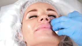 Non-surgical correction of shape of nose. A young girl during beauty procedure. Close up of beautician hands in blue. Gloves making injections to nose stock footage