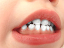 маленькие зубы белые Стоковые Изображения RF