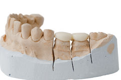 牙齿假肢 免版税库存图片