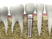 牙插入物 免版税库存图片