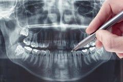 Зубоврачебный рентгеновский снимок Стоковые Изображения RF