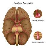 大脑的动脉瘤 库存照片