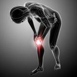 女性膝盖痛苦 库存照片