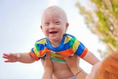 有唐氏综合症的婴孩 免版税图库摄影