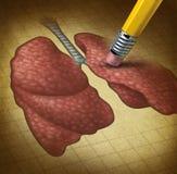 丢失的肺脏功能 库存图片