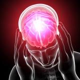 被显示的顶头痛苦 库存照片