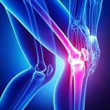 在蓝色查出的膝盖痛苦 库存图片