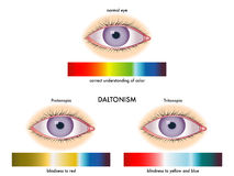 色盲 库存图片