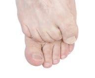 痒的脚。 图库摄影