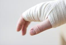 Перевязанная рука Стоковая Фотография RF