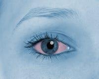 疼痛眼睛,显示红色 库存图片