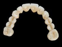 瓷牙-牙齿桥梁 免版税图库摄影