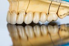 陶瓷牙-牙齿桥梁 免版税库存图片