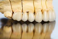 牙齿桥梁侧向看法  库存照片