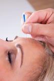Женщина получая терапию иглоукалывания Стоковая Фотография RF