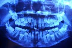 Панорамный зубоврачебный рентгеновский снимок Стоковое Изображение
