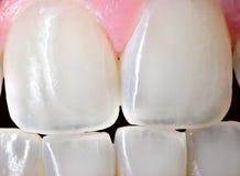 人的女性门牙 库存照片