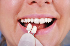 Зуб определения тени Стоковые Изображения RF
