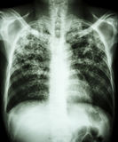 Πνευμονική φυματίωση Στοκ φωτογραφία με δικαίωμα ελεύθερης χρήσης