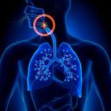 呼吸暂停-阻碍睡眠停吸 库存照片
