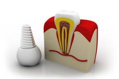 在下颌骨头的牙插入物 免版税库存照片
