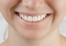 与白色完善的牙的青少年的微笑 库存照片
