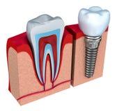 健康牙和牙插入物解剖学在下颌骨头 库存照片