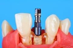 在下颌种入的牙插入物 免版税库存照片