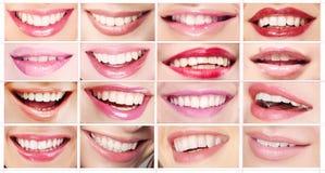 唇膏 套妇女的嘴唇 暴牙的微笑 免版税图库摄影
