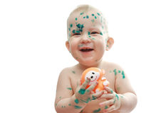 快乐的鸡不适的孩子痘 库存照片