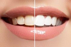 在漂白的前后,完善微笑 牙齿保护和漂白牙 免版税库存图片